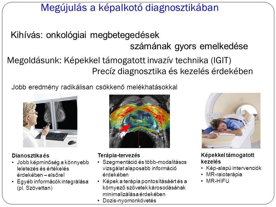 Megújulás a képalkotó diagnosztikában Kihívás: onkológiai megbetegedések számának gyors emelkedése Jobb eredmény radikálisan csökkenő melékhatásokkal Dianosztika és Jobb képminőség a könnyebb leletezés és értékelés érdekében – elsőre.