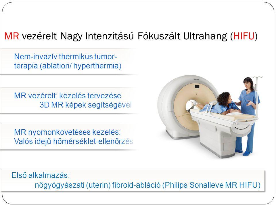 Nem-invazív thermikus tumor- terapia (ablation/ hyperthermia) MR vezérelt: kezelés tervezése 3D MR képek segítségével MR nyomonkövetéses kezelés: Valós idejű hőmérséklet-ellenőrzés MR nyomonkövetéses kezelés: Valós idejű hőmérséklet-ellenőrzés MR vezérelt Nagy Intenzitású Fókuszált Ultrahang (HIFU) Első alkalmazás: nőgyógyászati (uterin) fibroid-abláció (Philips Sonalleve MR HIFU)