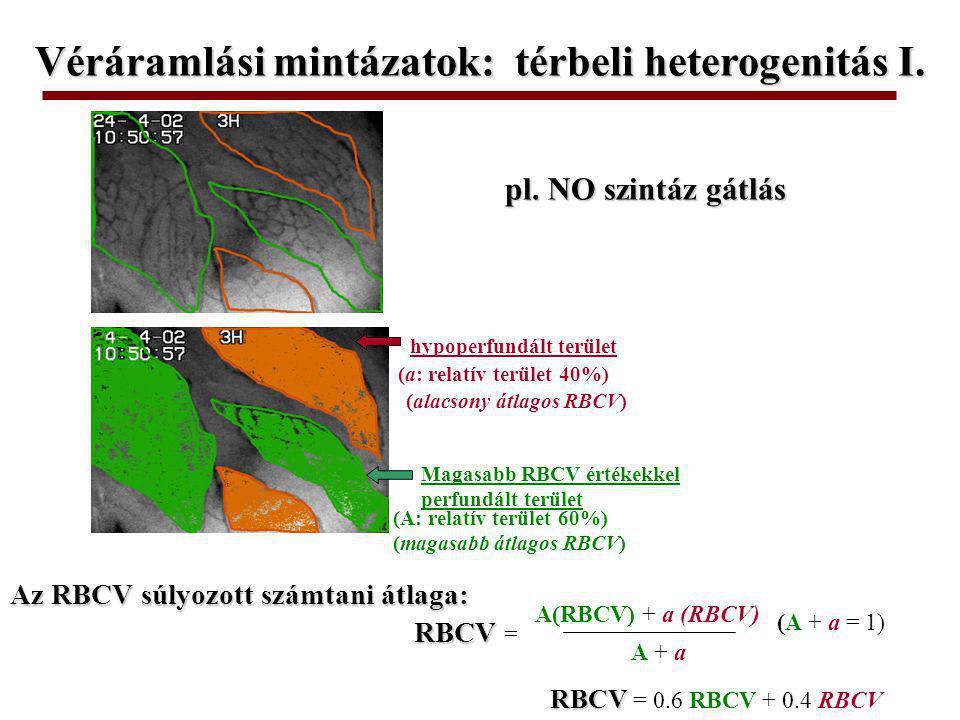 magasabb RBCV-jű kapillárisok (L: relatív hossz 70%) Hypoperfundált kapillárisok (l: relatív hossz 30%) RBCV RBCV = L + lL + l L(RBCV) + l (RBCV) RBCV RBCV = 0.7 RBCV + 0.3 RBCV (L + l = 1) pl.
