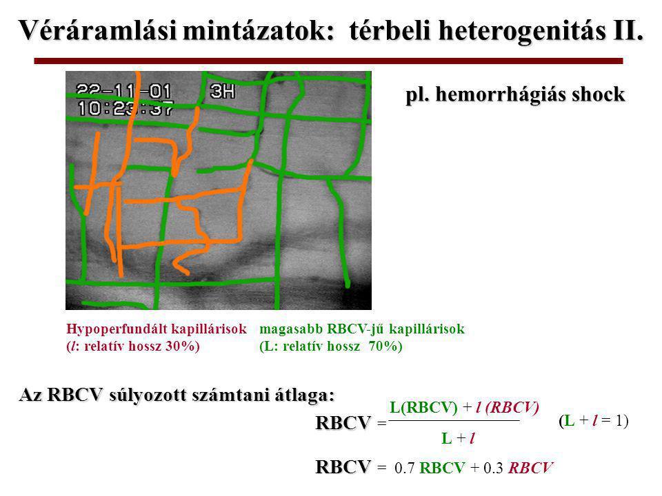 Véráramlá mintázatok változása: időbeli heterogenitás Kontroll: folyamatos áramlás Haemorrhagiás shock: oszcilláció Resuscitatio: folyamatos áramlás / oszcilláció RBCV (µm/sec)  700  100 magas flowalacsony flow Az RBCV súlyozott számtani átlaga: t1t1 t2t2 t3t3 tntn TnTn T3T3 T2T2 T1T1 v1v1 v2v2 v3v3 vnvn VV1VV1 VV2VV2 VV3VV3 VVnVVn (vt) 1 + (VT) 1 + (vt) 2 + (VT) 2 + … (vt) n + (VT) n t 1 + T 1 + t 2 + T 2 + … t n + T n Idő (súlyozó faktor = relatív időtartamok) Tt v V vt + VT t + Tt + T