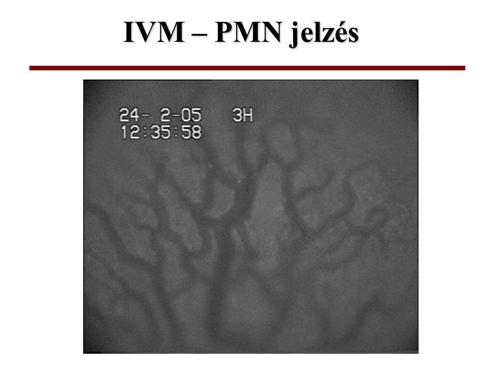 IVM – PMN jelzés