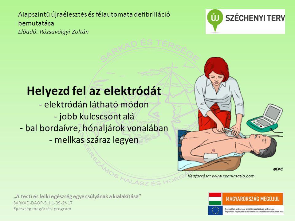 """Helyezd fel az elektródát - elektródán látható módon - jobb kulcscsont alá - bal bordaívre, hónaljárok vonalában - mellkas száraz legyen """"A testi és lelki egészség egyensúlyának a kialakítása SARKAD-DAOP-5.1.1-09-2f-17 Egészség megőrzési program Alapszintű újraélesztés és félautomata defibrilláció bemutatása Előadó: Rózsavölgyi Zoltán Képforrása: www.reanimatio.com"""