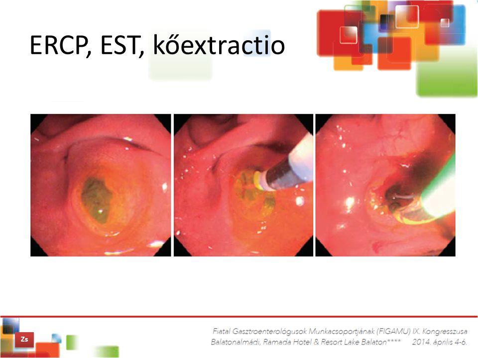 ERCP, EST, kőextractio Zs