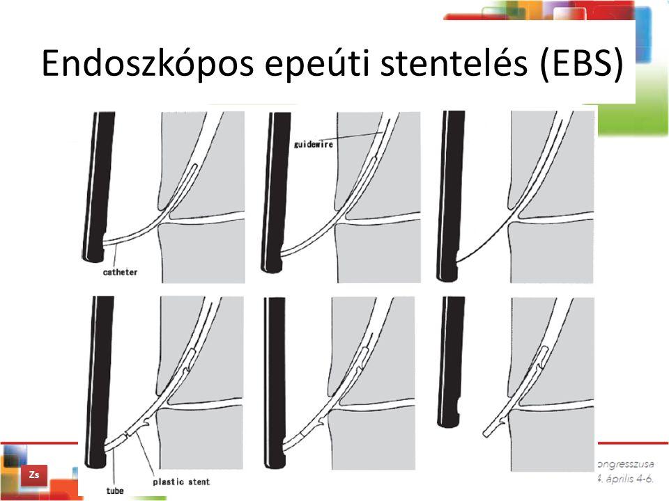Endoszkópos epeúti stentelés (EBS) Zs