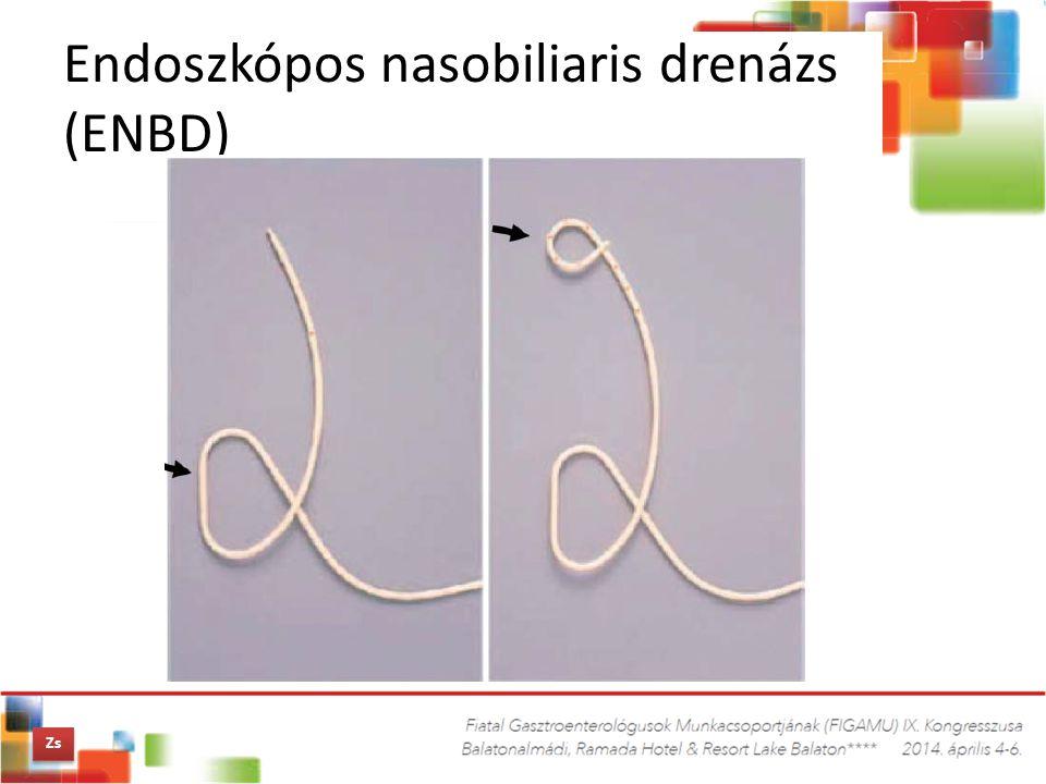 Endoszkópos nasobiliaris drenázs (ENBD) Zs