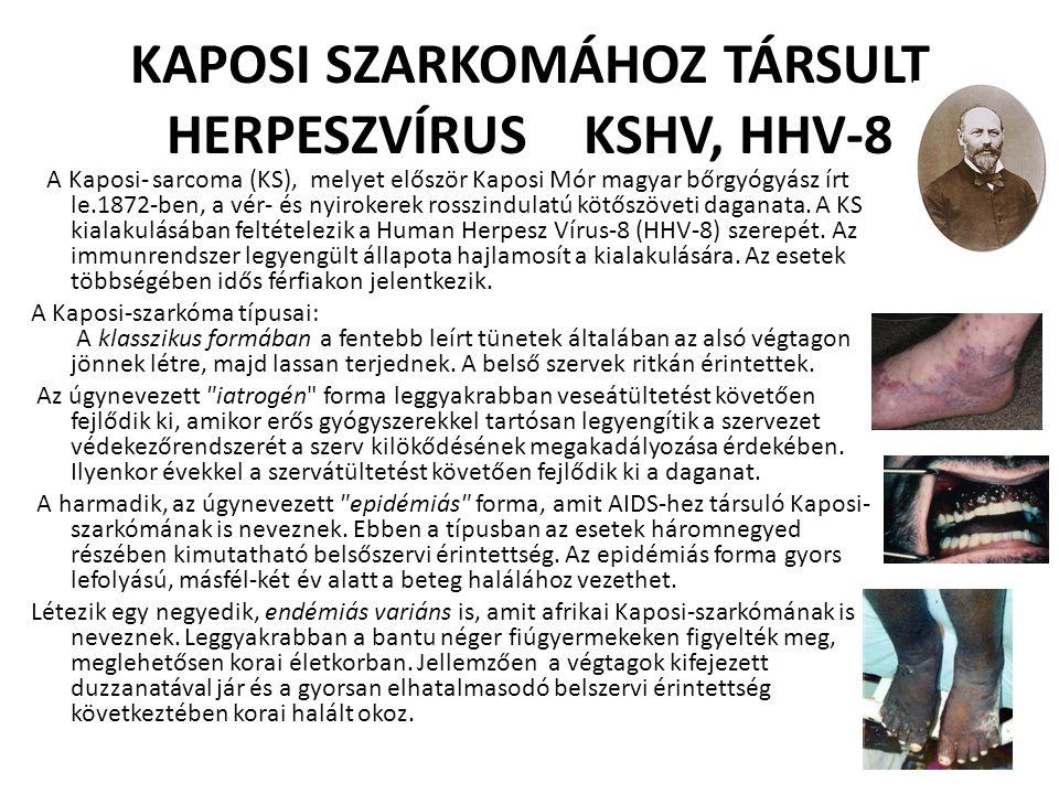 KAPOSI SZARKOMÁHOZ TÁRSULT HERPESZVÍRUS KSHV, HHV-8 A Kaposi- sarcoma (KS), melyet először Kaposi Mór magyar bőrgyógyász írt le.1872-ben, a vér- és ny