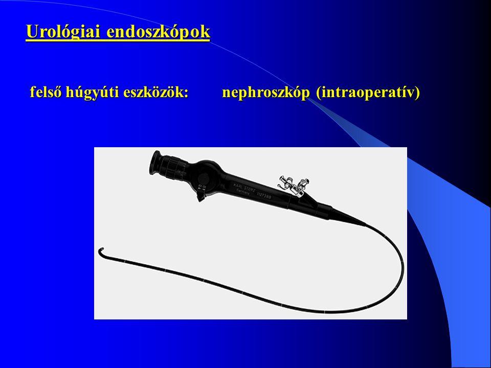 Urológiai endoszkópok felső húgyúti eszközök:nephroszkóp (intraoperatív)