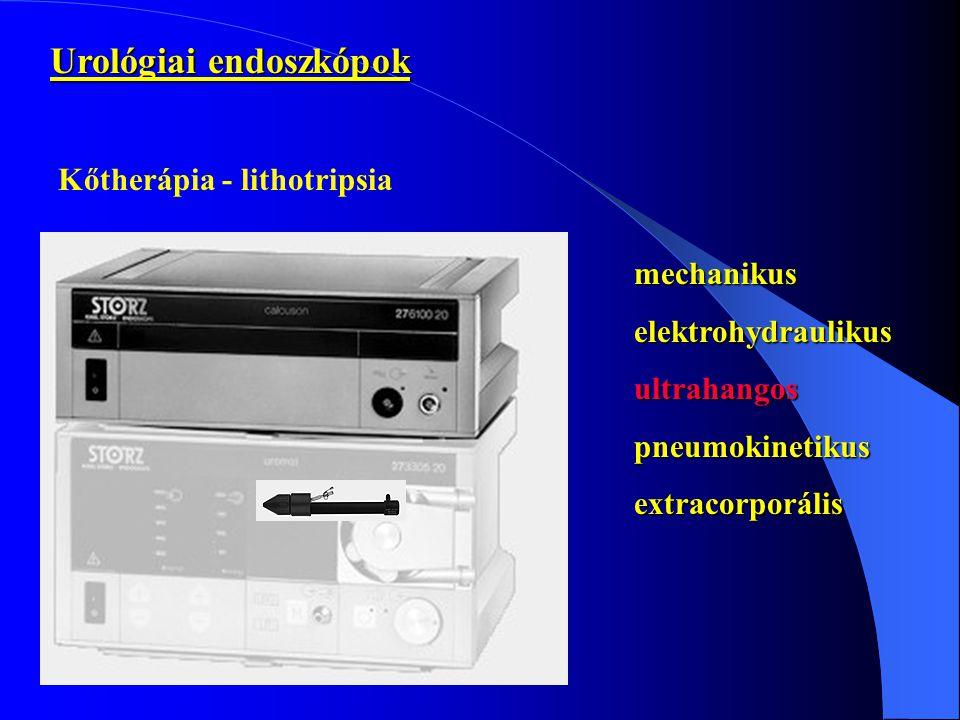 Urológiai endoszkópok Kőtherápia - lithotripsia mechanikuselektrohydraulikusultrahangospneumokinetikusextracorporális