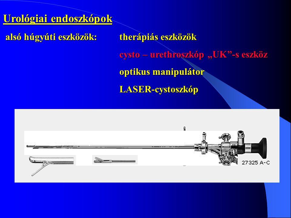 """Urológiai endoszkópok alsó húgyúti eszközök: therápiás eszközök cysto – urethroszkóp """"UK -s eszköz optikus manipulátor optikus manipulátorLASER-cystoszkóp"""