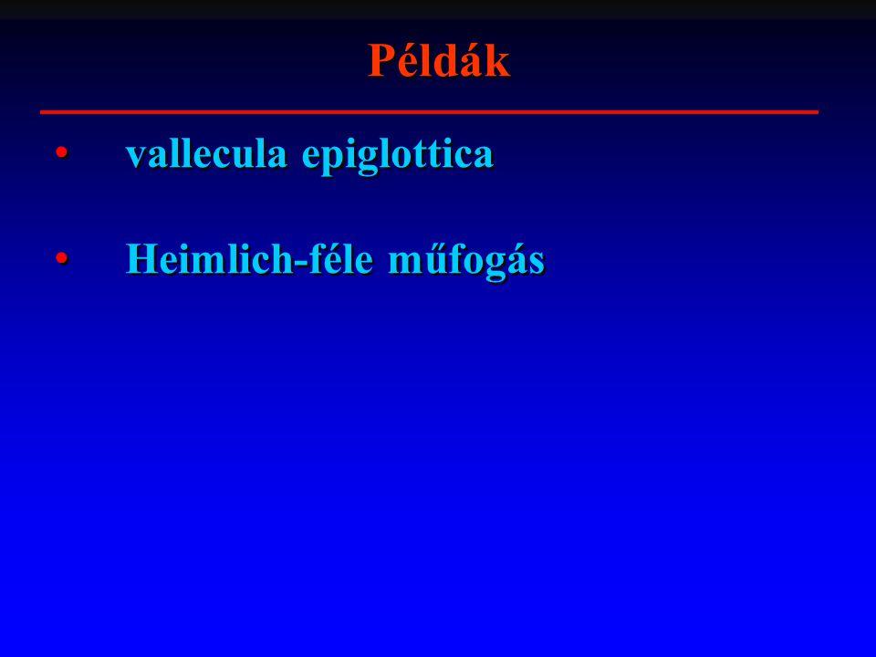 Példák vallecula epiglottica Heimlich-féle műfogás vallecula epiglottica Heimlich-féle műfogás