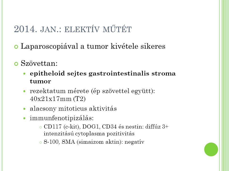 2014. JAN.: ELEKTÍV MŰTÉT Laparoscopiával a tumor kivétele sikeres Szövettan: epitheloid sejtes gastrointestinalis stroma tumor rezektatum mérete (ép
