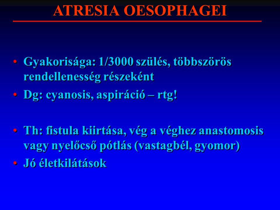 Gyakorisága: 1/3000 szülés, többszörös rendellenesség részeként Dg: cyanosis, aspiráció – rtg! Th: fistula kiirtása, vég a véghez anastomosis vagy nye