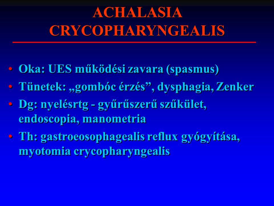 """Oka: UES működési zavara (spasmus) Tünetek: """"gombóc érzés"""", dysphagia, Zenker Dg: nyelésrtg - gyűrűszerű szűkület, endoscopia, manometria Th: gastroeo"""