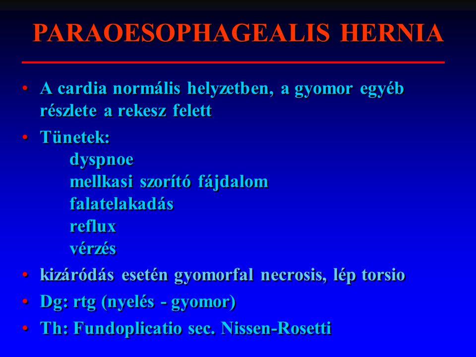 A cardia normális helyzetben, a gyomor egyéb részlete a rekesz felett Tünetek: dyspnoe mellkasi szorító fájdalom falatelakadás reflux vérzés kizáródás esetén gyomorfal necrosis, lép torsio Dg: rtg (nyelés - gyomor) Th: Fundoplicatio sec.