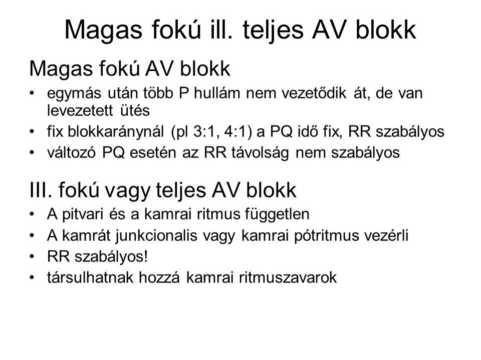 Magas fokú ill. teljes AV blokk Magas fokú AV blokk egymás után több P hullám nem vezetődik át, de van levezetett ütés fix blokkaránynál (pl 3:1, 4:1)