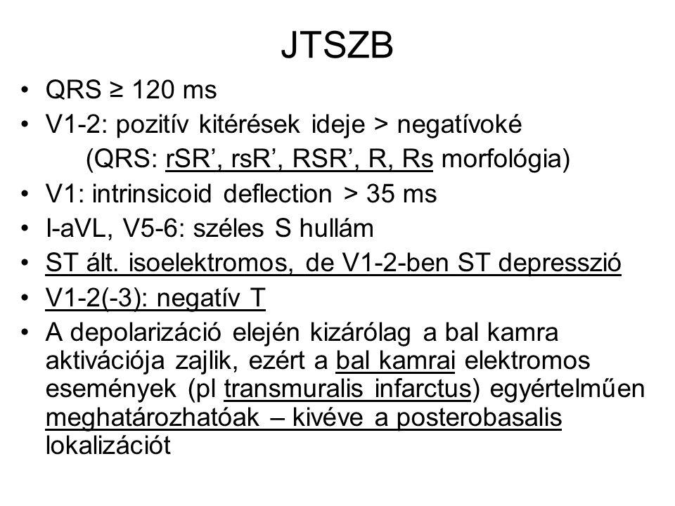 JTSZB QRS ≥ 120 ms V1-2: pozitív kitérések ideje > negatívoké (QRS: rSR', rsR', RSR', R, Rs morfológia) V1: intrinsicoid deflection > 35 ms I-aVL, V5-