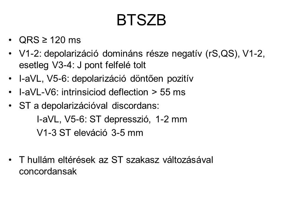 BTSZB QRS ≥ 120 ms V1-2: depolarizáció domináns része negatív (rS,QS), V1-2, esetleg V3-4: J pont felfelé tolt I-aVL, V5-6: depolarizáció döntően pozi
