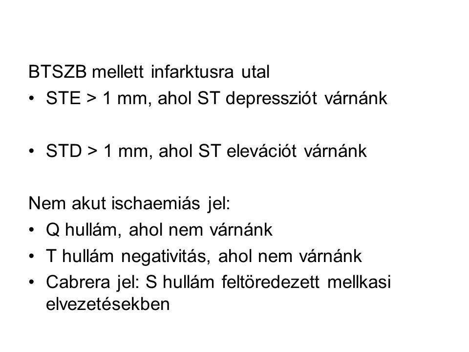 BTSZB mellett infarktusra utal STE > 1 mm, ahol ST depressziót várnánk STD > 1 mm, ahol ST elevációt várnánk Nem akut ischaemiás jel: Q hullám, ahol n