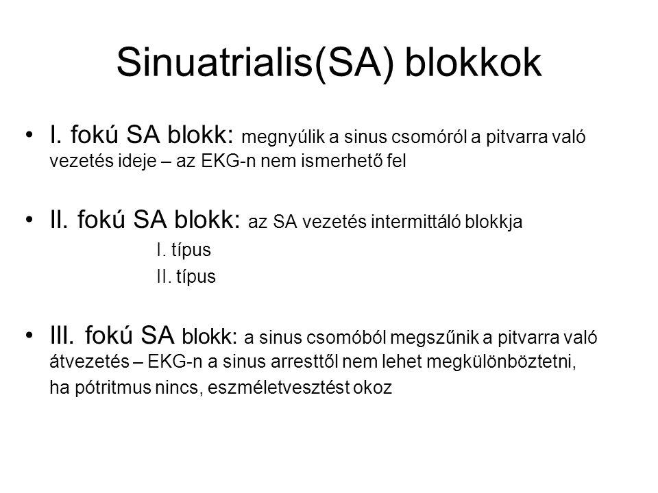 Sinuatrialis(SA) blokkok I. fokú SA blokk: megnyúlik a sinus csomóról a pitvarra való vezetés ideje – az EKG-n nem ismerhető fel II. fokú SA blokk: az