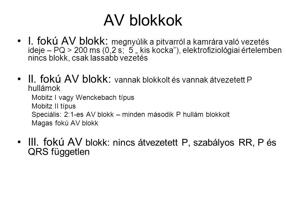 """AV blokkok I. fokú AV blokk: megnyúlik a pitvarról a kamrára való vezetés ideje – PQ > 200 ms (0,2 s; 5 """" kis kocka""""), elektrofiziológiai értelemben n"""