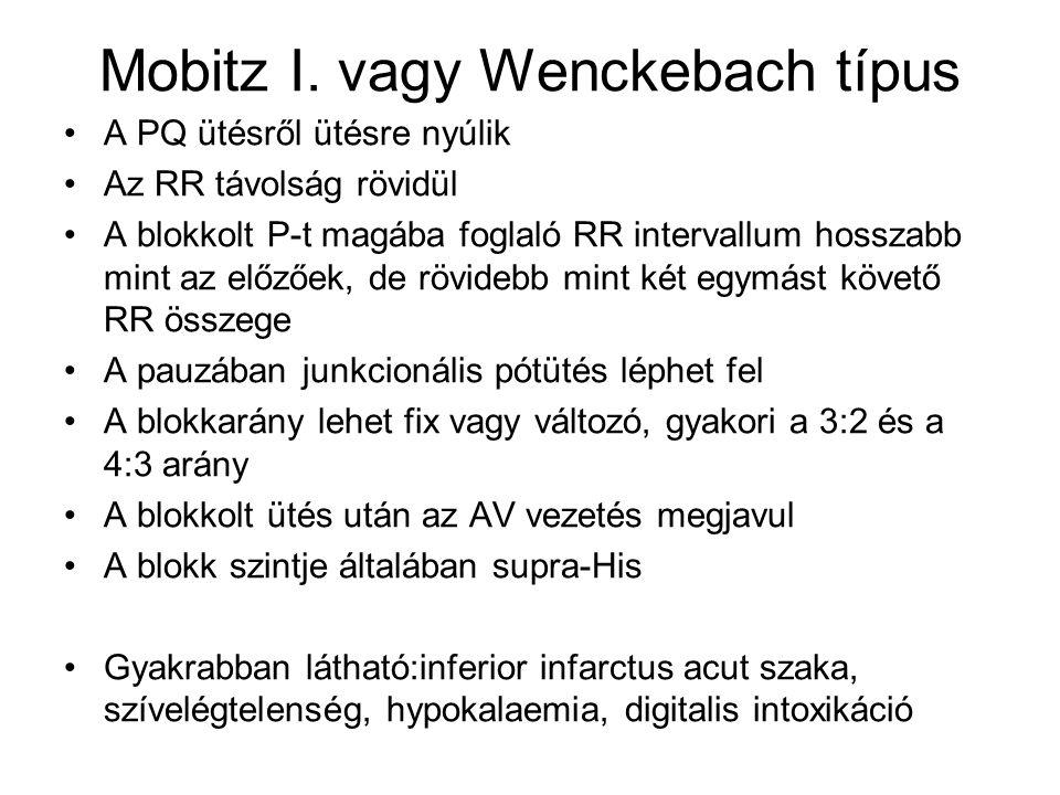 Mobitz I. vagy Wenckebach típus A PQ ütésről ütésre nyúlik Az RR távolság rövidül A blokkolt P-t magába foglaló RR intervallum hosszabb mint az előzőe