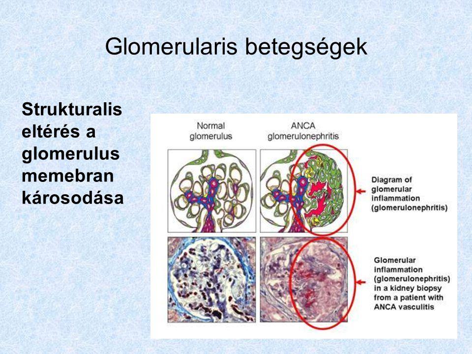 Glomerularis betegségek Strukturalis eltérés a glomerulus memebran károsodása