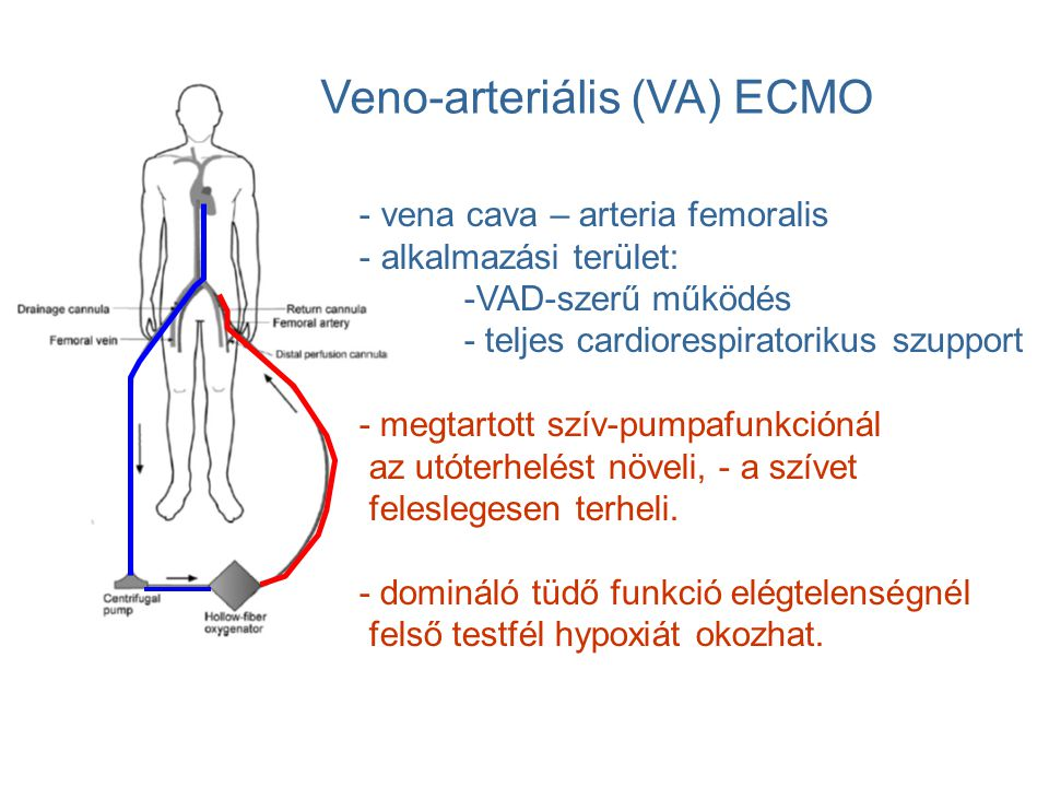 Veno-arteriális (VA) ECMO - vena cava – arteria femoralis - alkalmazási terület: -VAD-szerű működés - teljes cardiorespiratorikus szupport - megtartot