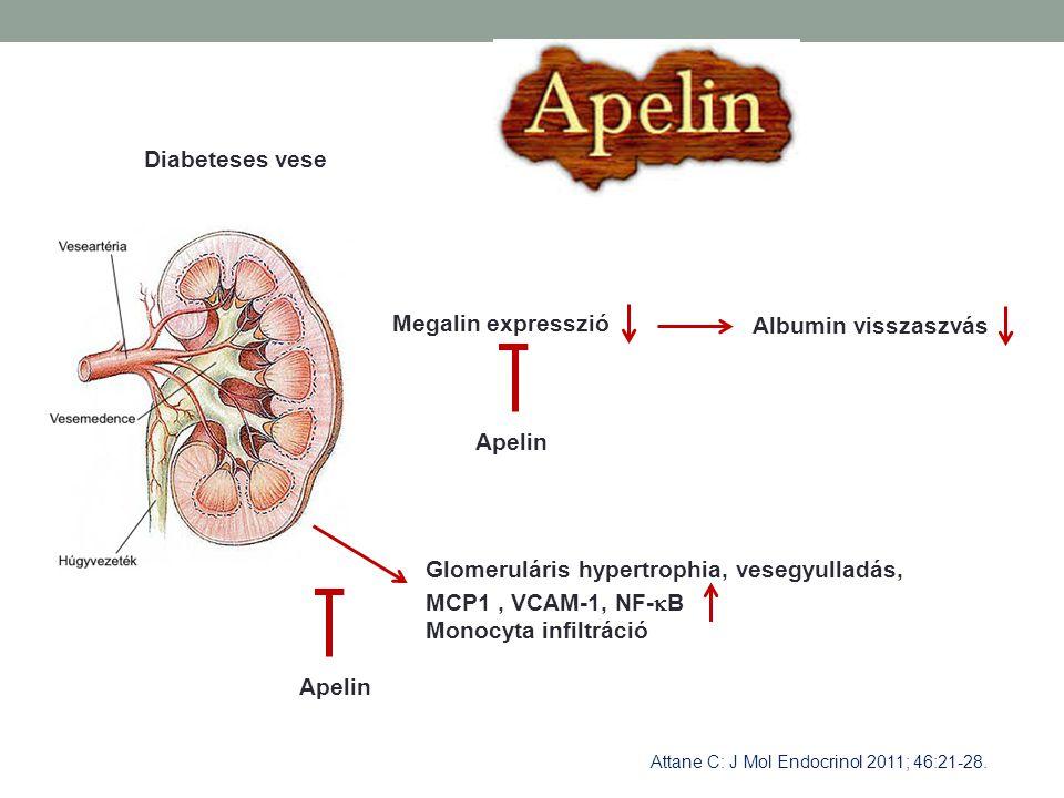 Diabeteses vese Megalin expresszió Albumin visszaszvás Apelin Glomeruláris hypertrophia, vesegyulladás, MCP1, VCAM-1, NF-  B Monocyta infiltráció Ape