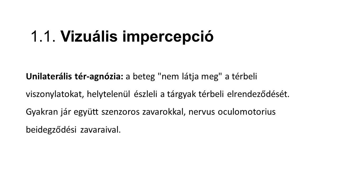 1.1. Vizuális impercepció Unilaterális tér-agnózia: a beteg