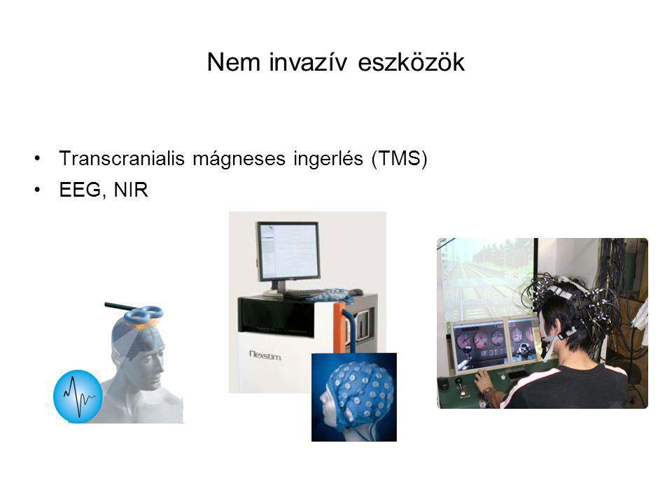 Nem invazív eszközök Transcranialis mágneses ingerlés (TMS) EEG, NIR