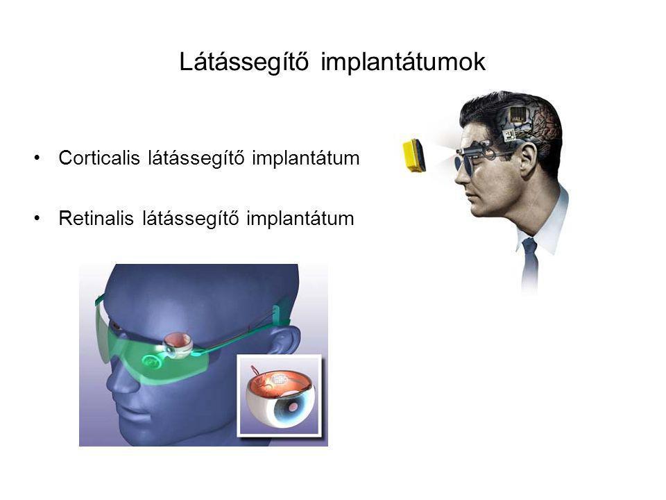 Látássegítő implantátumok Corticalis látássegítő implantátum Retinalis látássegítő implantátum