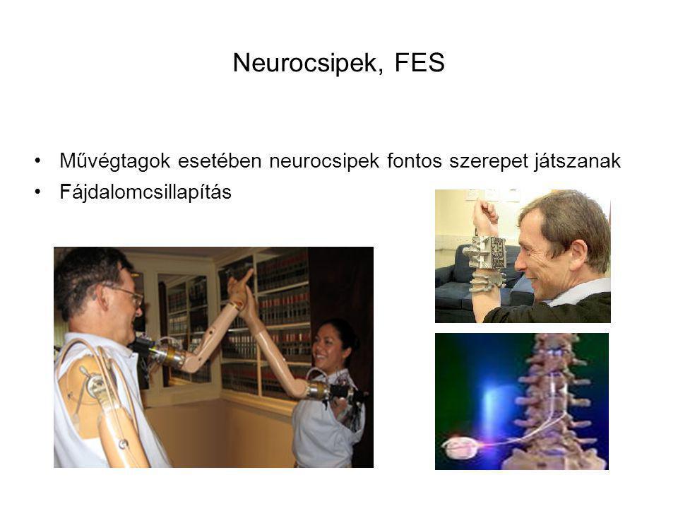 Neurocsipek, FES Művégtagok esetében neurocsipek fontos szerepet játszanak Fájdalomcsillapítás