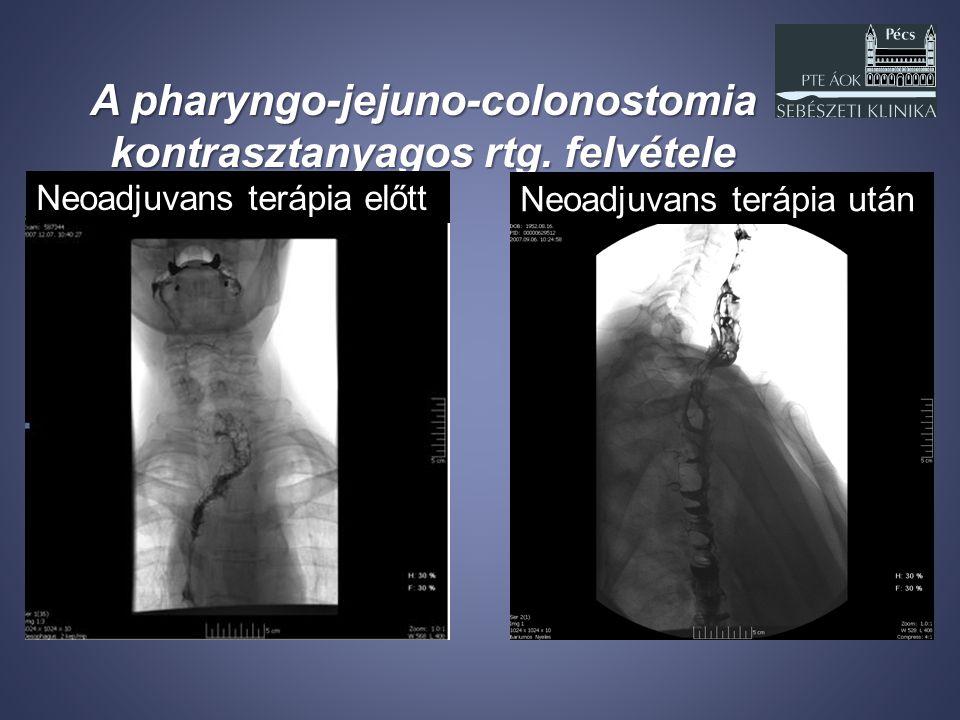 A pharyngo-jejuno-colonostomia kontrasztanyagos rtg. felvétele Neoadjuvans terápia előtt Neoadjuvans terápia után