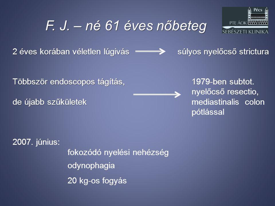 F. J. – né 61 éves nőbeteg 2 éves korában véletlen lúgivássúlyos nyelőcső strictura Többször endoscopos tágítás, 1 Többször endoscopos tágítás, 1979-b