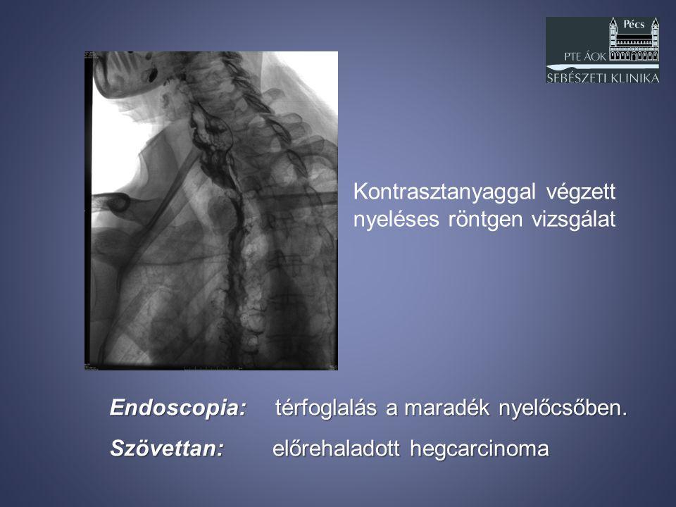 Endoscopia: térfoglalás a maradék nyelőcsőben. Szövettan: előrehaladott hegcarcinoma Kontrasztanyaggal végzett nyeléses röntgen vizsgálat
