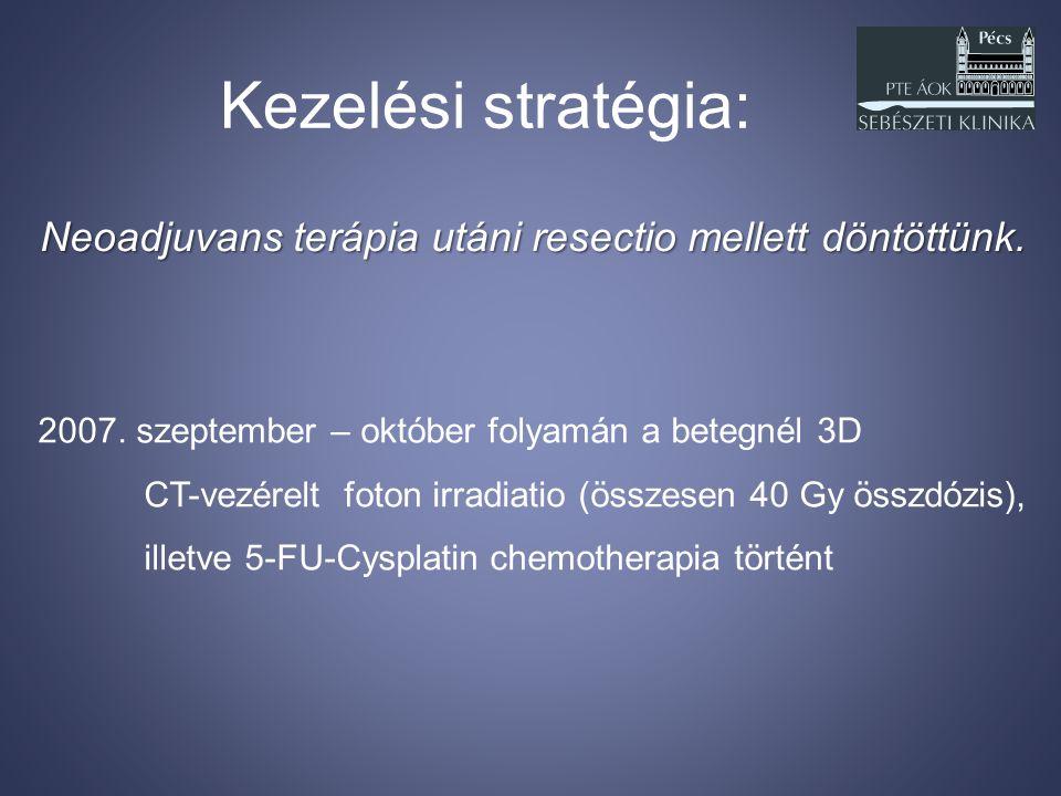 Kezelési stratégia: 2007. szeptember – október folyamán a betegnél 3D CT-vezérelt foton irradiatio (összesen 40 Gy összdózis), illetve 5-FU-Cysplatin
