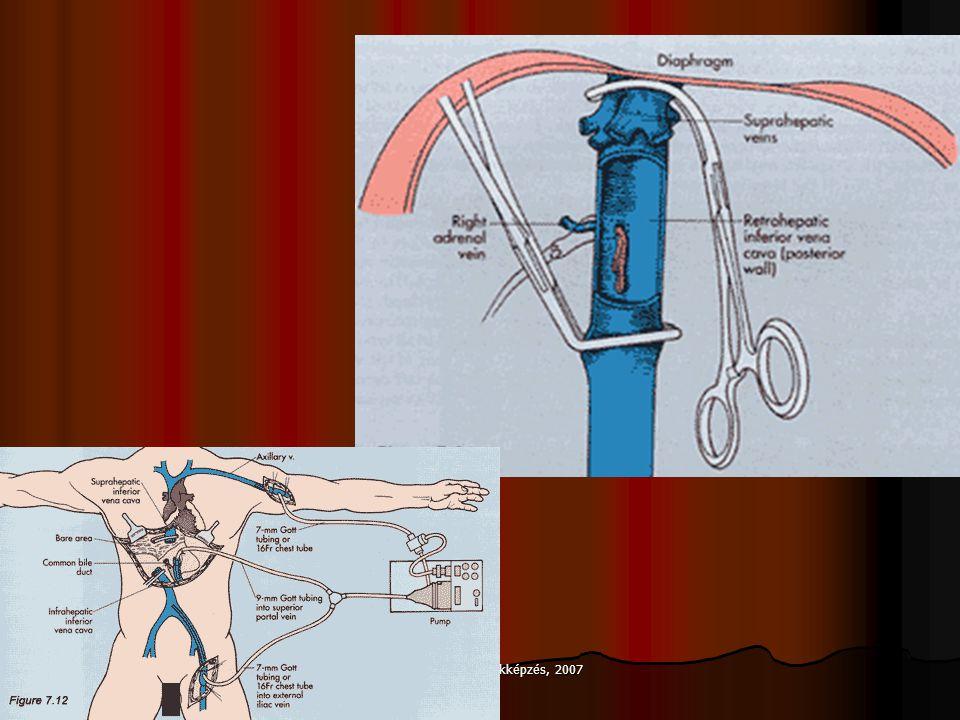 Szövődmények Nem keringő máj (artéria vagy véna) Epeúti szűkület, epecsorgás Vérzés (műtét után) Kilökődés Veseelégtelenség Fertőzések (virus, baktérium), szepszis HCV kiújulás Daganatok keletkezése
