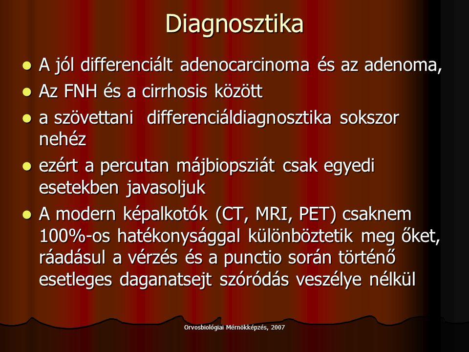 Orvosbiológiai Mérnökképzés, 2007 Semimalignus tumorok Carcinoid Carcinoid Primer májcarcinoid Primer májcarcinoid Metastasis (pancreas, vékonybél) Metastasis (pancreas, vékonybél) Stromatumor Stromatumor Leiomyosarcoma Leiomyosarcoma Műtét: Műtét: Resectio Resectio Irresecabilitás esetén májátültetés, ha az extrahepatikus terjedés és/vagy primer focus kizárt Irresecabilitás esetén májátültetés, ha az extrahepatikus terjedés és/vagy primer focus kizárt