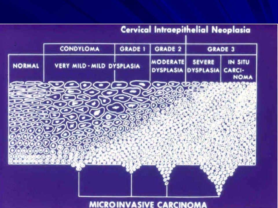 a méhnyak és a condyloma dysplasia